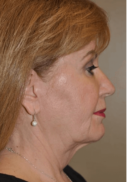 Face and Neck Lift Before