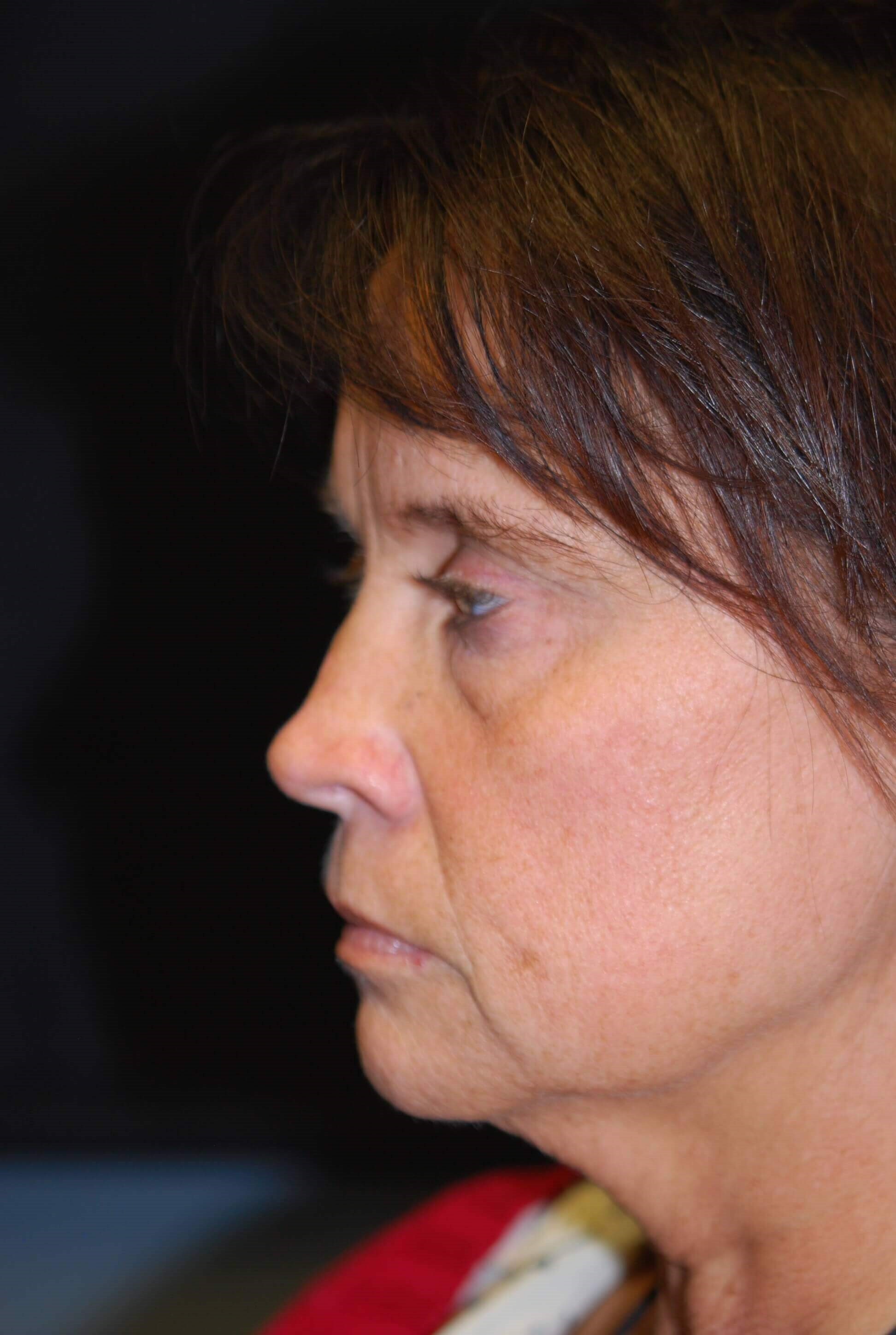 Neck Lift Before