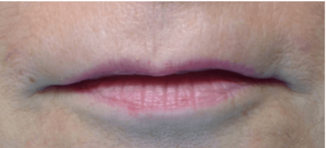 Juvéderm Lip Filler Before