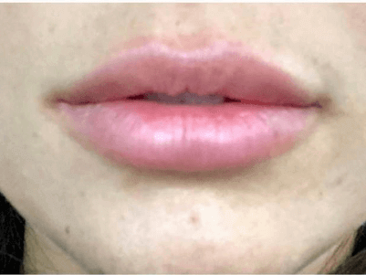 Juvéderm Lip Filler After
