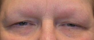 Blepharoplasty and Brow Lift Before
