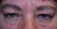 Blepharoplasty and Botox Before