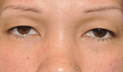 Upper Blepharoplasty (Lids) Before