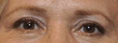Upper Blepharoplasty (Lids) After