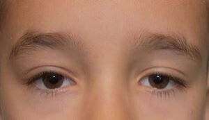 Pediatric Ptosis After
