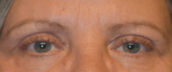 Blepharoplasty and Brow Lift After