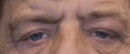 Ptosis Repair Before